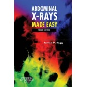Abdominal X-Rays Made Easy by James Begg