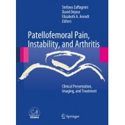 Patellofemoral Pain, Instability, and Arthritis by Stefano Zaffagnini