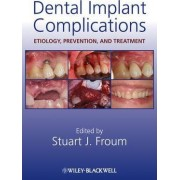 Dental Implant Complications by Stuart J. Froum