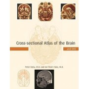 Cross-Sectional Atlas of the Human Brain by Peter Ratiu