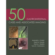 50 Gastrointestinal Cases & Associated Imaging by Abdullah A. Shaikh
