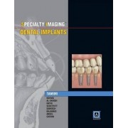 Specialty Imaging: Dental Implants by Dania Faisal Tamimi