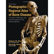 Photographic Regional Atlas of Bone Disease: A Guide to Pathologic and Normal Variation in the Human Skeleton by Robert W Mann