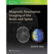 Magnetic Resonance Imaging of the Brain and Spine by Scott W. Atlas