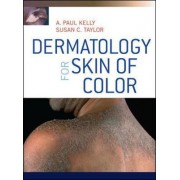 Dermatology for Skin of Color by Susan C. Taylor