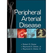 Peripheral Arterial Disease by Robert S. Dieter