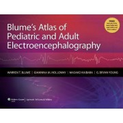 Blume's Atlas of Pediatric and Adult Electroencephalography by Warren T. Blume