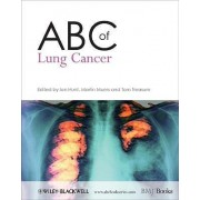 ABC of Lung Cancer by Ian Hunt