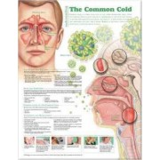 Understanding the Common Cold Anatomical Chart by Anatomical Chart Company