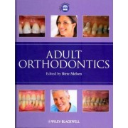 Adult Orthodontics by Birte Melsen