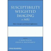 Susceptibility Weighted Imaging in MRI by E. Mark Haacke