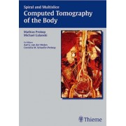 Spiral and Multislice Computed Tomography of the Body by Mathias Prokop