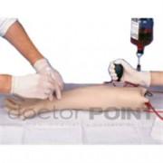 braccio per puntura di arterie