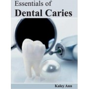 Essentials of Dental Caries by Kaley Ann