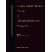 Cardiac Arrhythmias, Pacing & Electrophysiology by Panos E. Vardas