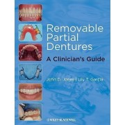 Removable Partial Dentures by John D. Jones