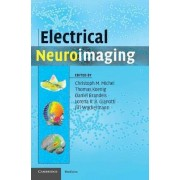 Electrical Neuroimaging by Christoph M. Michel
