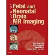 Atlas of Fetal and Postnatal Brain MR by Janet Morris