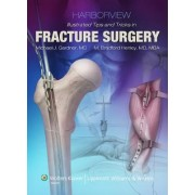 Harborview Illustrated Tips and Tricks in Fracture Surgery by Michael J. Gardner