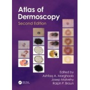 An Atlas of Dermoscopy by Ashfaq A. Marghoob