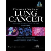 Principles and Practice of Lung Cancer by Harvey I. Pass