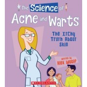 The Science of Acne and Warts: The Itchy Truth about Skin