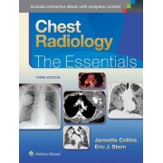 Chest Radiology: The Essentials by Collins