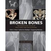 Broken Bones by Felix S. Chew
