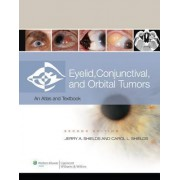 Eyelid, Conjunctival, and Orbital Tumors by Jerry A. Shields