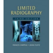 Limited Radiography by Frances Campeau