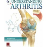 Understanding Arthritis Flip Chart by Scientific Publishing