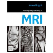 Planning and Positioning in MRI by Anne Bright