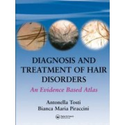 Diagnosis and Treatment of Hair Disorders by Antonella Tosti