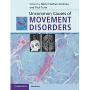 Uncommon Causes of Movement Disorders by Nestor Galvez-Jimenez