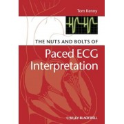 The Nuts and Bolts of Paced ECG Interpretation, Paperback