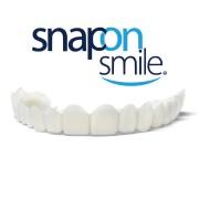 Snap-On-Smile ideiglenes foghíd