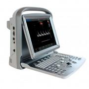 Ecógrafo Portátil Chison ECO 6 con Sonda Lineal de 10MHz: El más potente y con mejor calidad de imagen de la familia ECO