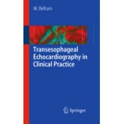 Transesophageal Echocardiography in Clinical Practice (Belham Mark)(Paperback) (9781848826205)