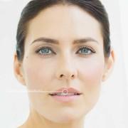 KÖ-KLINIK Lippenunterspritzung 0,55 ml