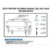 Scut Motor Metalic Asam Hyundai I30 Elantra Kia Ceed