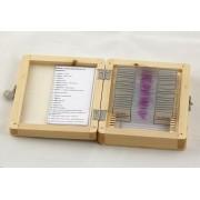 Preparate pentru microscop (20buc, tumori și țesut uman)
