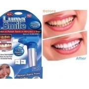 Aparat pentru albit dintii Luma Smile