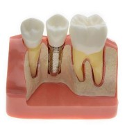 Dental Tools Implant Decomposition Model Oral Teaching Teeth