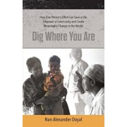 Dig Where You Are: How One Person's Effort Can Save a Life, Empower a Community and Create Meaningful Change in the World, Paperback/Nan Alexander Doyal