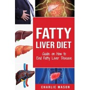 Fatty Liver Diet: Guide on How to End Fatty Liver Disease Fatty Liver Diet Books: Fatty Liver Diet (fatty liver diet for fatty liver Boo, Paperback/Charlie Mason