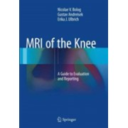 MRI of the Knee - A Guide to Evaluation and Reporting (Bolog Nicolae V.)(Paperback) (9783319352534)