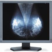 NEC 21,3 inch Dual Monitor MD211G5 Solution Set bestaat uit 2 monitoren(medisch gebruik)