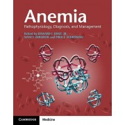 Anemia Paperback with Online Resource by Edited by Jr Edward J Jr Benz & Edited by Nancy Berliner & Edited by Fred J Schiffman
