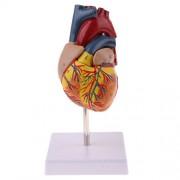 ELECTROPRIME 1:1 Human Anatomical Heart Pathology Anatomy Medical Organ Model Teach AIDS
