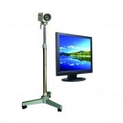 Kolposzkóp videó KN-2200 monitoros